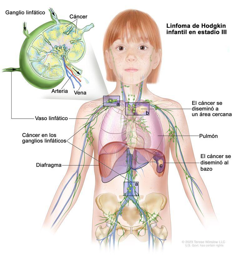 Linfoma de Hodgkin infantil en estadio III. En la imagen se observa cáncer en grupos de ganglios linfáticos encima y debajo del diafragma (a). También se muestra que el cáncer se diseminó fuera de los ganglios linfáticos a un área cercana, en el pulmón izquierdo (b) y el bazo (c). En la ampliación se observa un ganglio linfático con un vaso linfático, una arteria y una vena. Dentro del ganglio linfático se muestran células cancerosas.