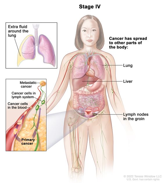 peritoneal cancer end of life symptoms