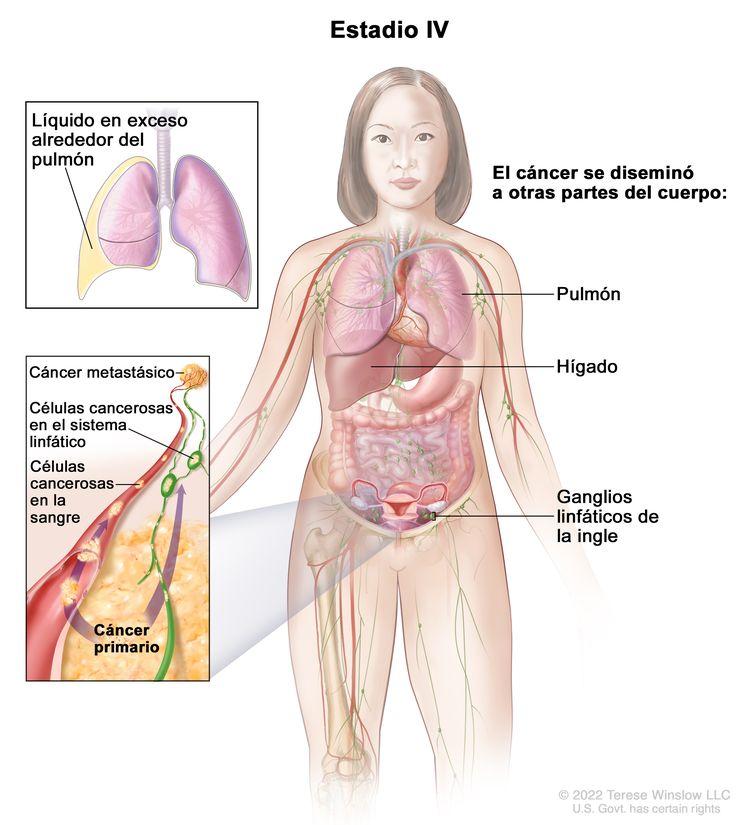 La figura del estadio IV muestra partes del cuerpo hacia donde se puede diseminar el cáncer de ovario, de trompas de Falopio y primario de peritoneo, incluso el pulmón, el hígado, el hueso y los ganglios linfáticos en la ingle. En un recuadro de la parte superior, se muestra líquido adicional alrededor del pulmón. En un recuadro en la parte inferior, se muestran las células cancerosas diseminándose a través de la sangre y el sistema linfático hacia otras partes del cuerpo donde se formó el cáncer metastásico.
