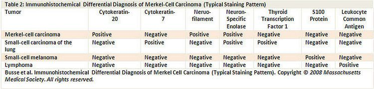 Celulas de Merkel