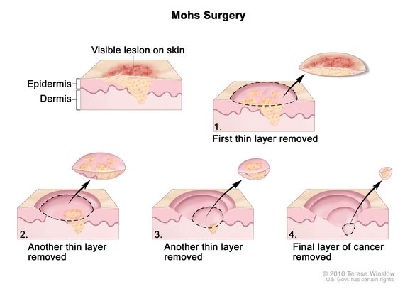 Definition Of Mohs Micrographic Surgery Nci Dictionary Of Cancer Terms National Cancer Institute