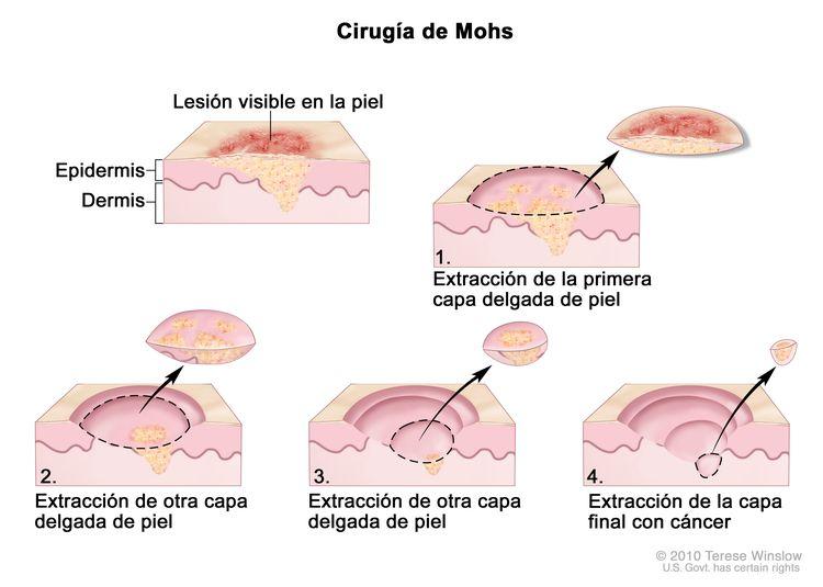 Cirugía de Mohs; el dibujo muestra una lesión visible en la piel. La imagen en detalle muestra un trozo de piel con cáncer en la epidermis (capa exterior de la piel) y la dermis (capa interna de la piel). Se observa una lesión visible en la superficie de la piel. Los cuatro cuadros numerados muestran la extracción de capas delgadas de piel una por una hasta que se termina de extraer todo el cáncer.