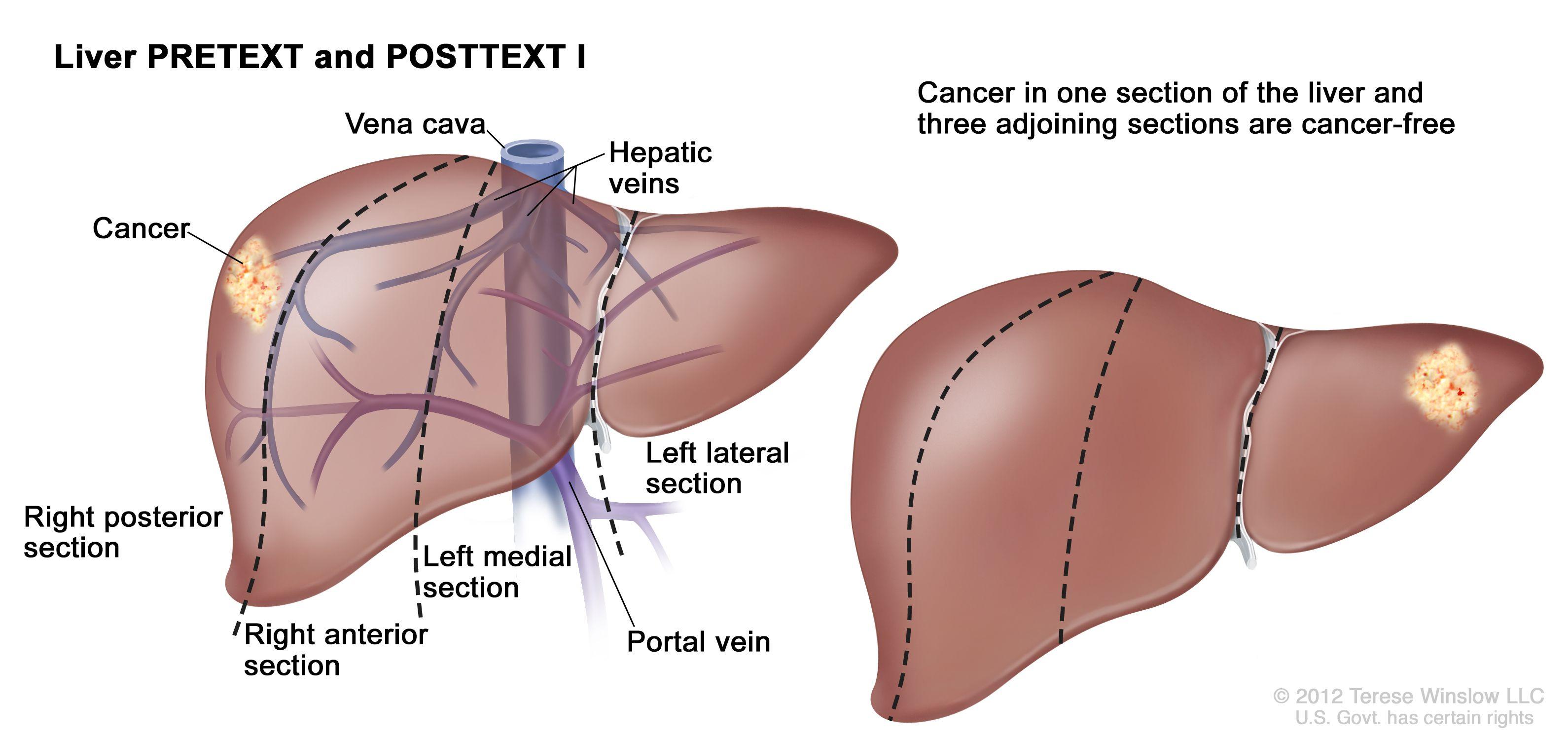 肝のPRETEXT I期;図は2つの肝を示す。点線は各肝をほぼ同一サイズの4区域に縦分割している。最初の肝では、がんが左端の区域に示されている。2つ目の肝では、がんが右端の区域に示されている。