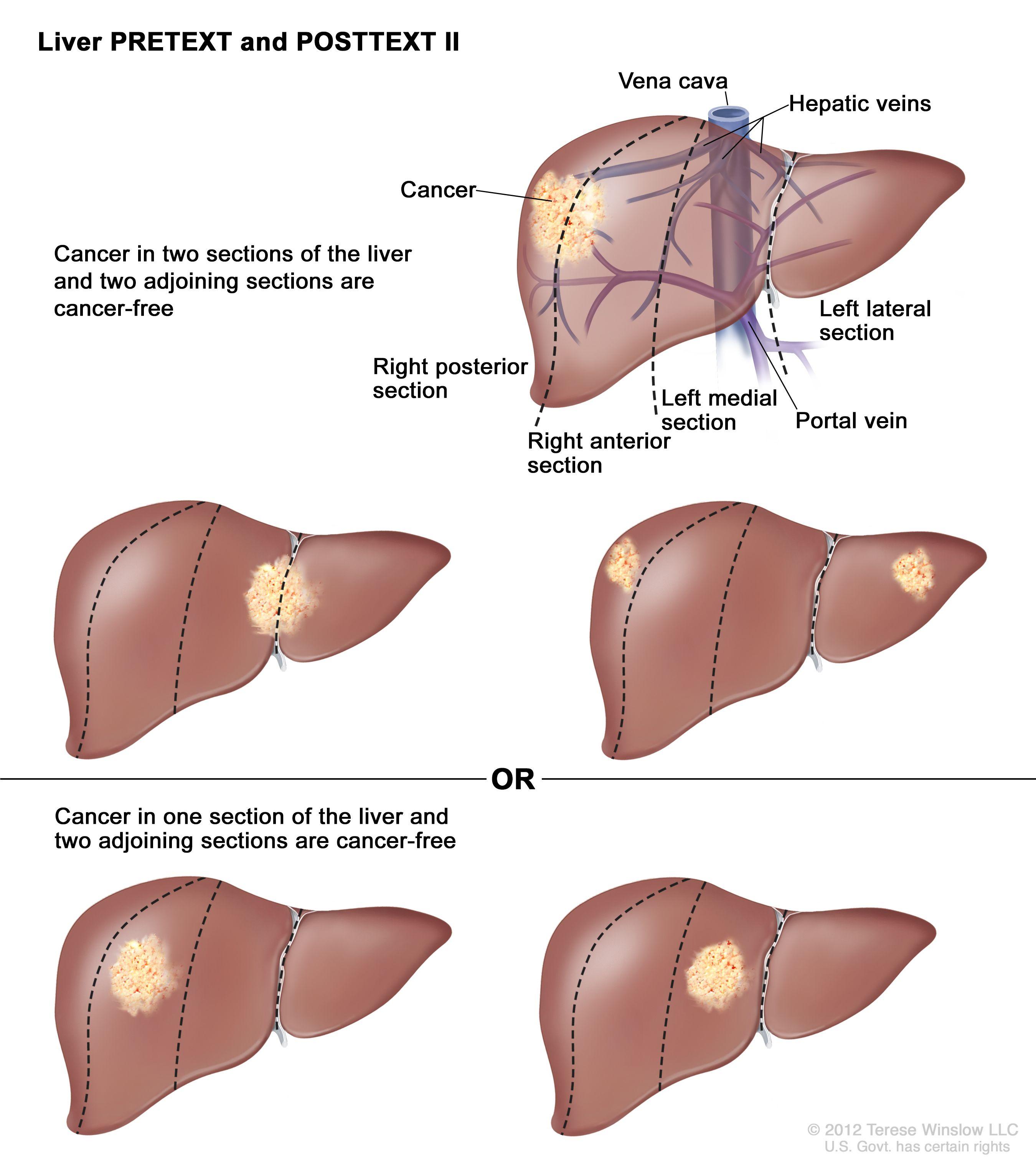 肝のPRETEXT II期;図は5つの肝を示す。点線は各肝をほぼ同一サイズの4区域に縦分割している。最初の肝では、がんが左の2つの区域に示されている。2つ目の肝では、がんが右の2つの区域に示されている。3つ目の肝では、がんが左端と右端の区域に示されている。4つ目の肝では、がんが左から2番目の区域に示されている。5つ目の肝では、がんが右から2番目の区域に示されている。