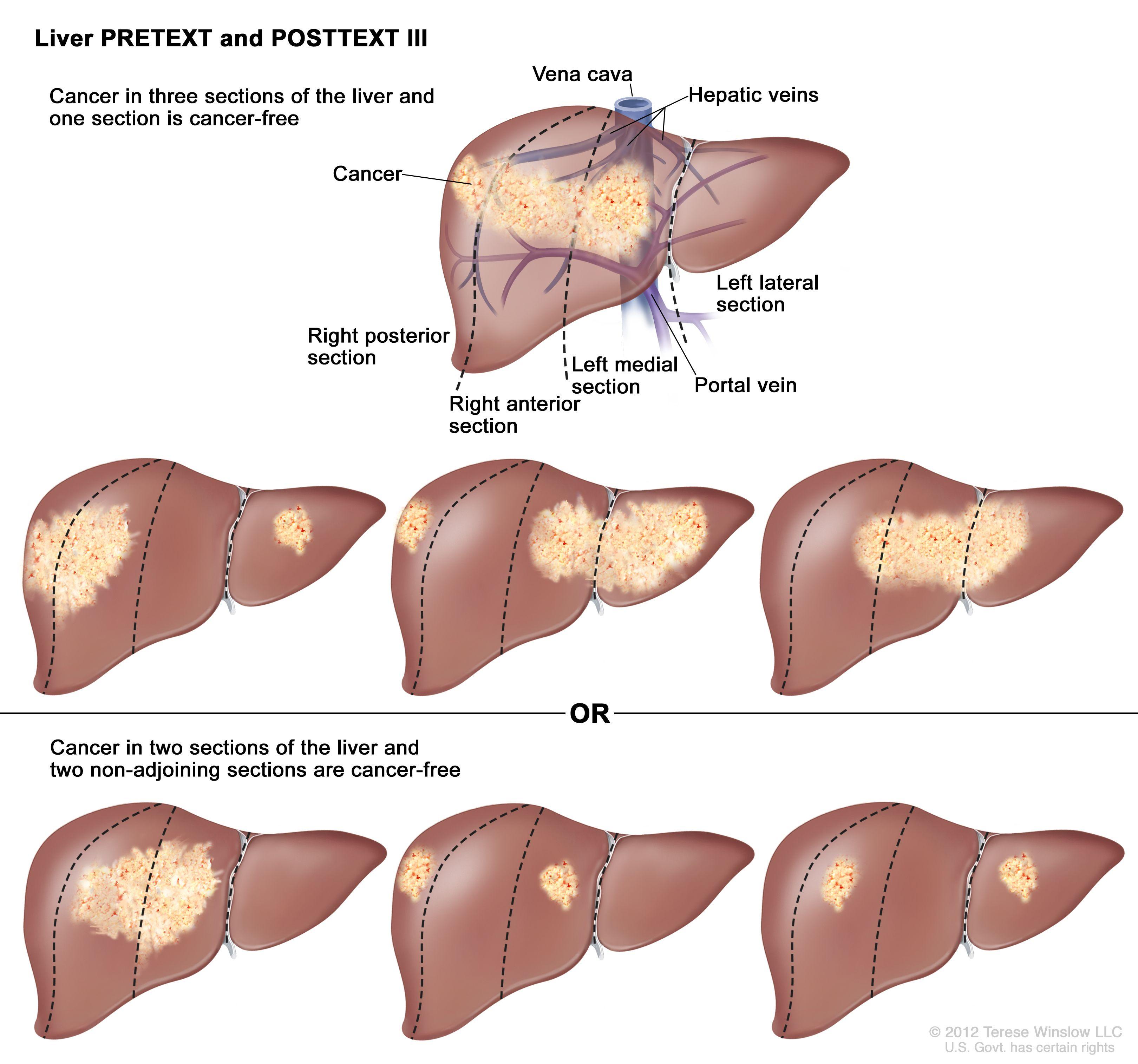 肝のPRETEXT III期;図は7つの肝を示す。点線は各肝をほぼ同一サイズの4区域に縦分割している。1つ目の肝では、がんが左の3つの区域に示されている。2つ目の肝では、がんが左の2つの区域および右端の区域に示されている。3つ目の肝では、がんが左端の区域および右の2つの区域に示されている。4つ目の肝では、がんが右の3つの区域に示されている。5つ目の肝では、がんが中央の2つの区域に示されている。6つ目の肝では、がんが左端の区域および右から2番目の区域に示されている。7つ目の肝は、がんが右端の区域および左から2番目の区域に示されている。