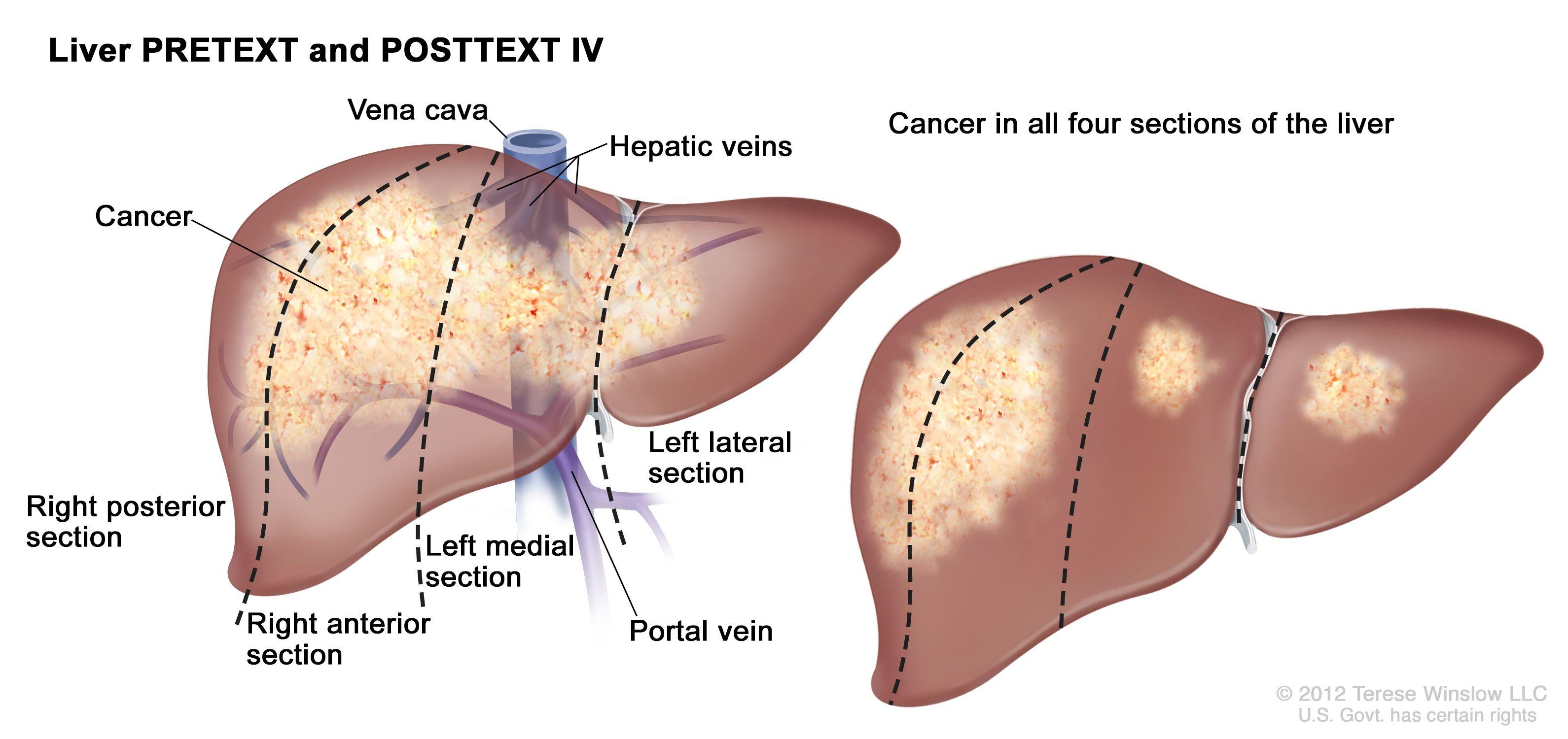 肝のPRETEXT IV期;図は2つの肝を示す。点線は各肝をほぼ同一サイズの4区域に縦分割している。1つ目の肝では、がんが4つの区域すべてにわたって示されている。2つ目の肝では、がんが左の2つの区域に示され、がんのスポットが右の2つの区域に示されている。
