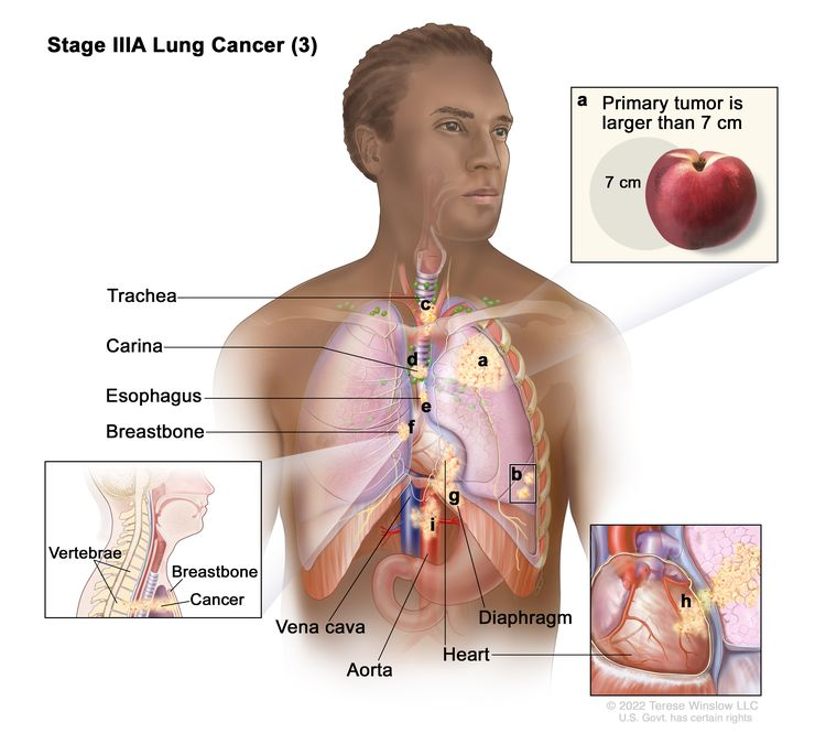 Stage IIIA lung cancer (3); drawing shows (a) a primary tumor (larger than 7 cm) in the left lung and (b) separate tumors in a different lobe of the lung with the primary tumor. Also shown is cancer that has spread to the (c) trachea, (d) carina, (e) esophagus, (f) breastbone, (g) diaphragm, (h) heart, and (i) the aorta and vena cava.