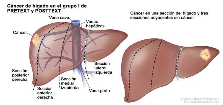 Cáncer de hígado en estadio I de PRETEXT; el dibujo muestra dos hígados. Las líneas de puntos dividen cada hígado en cuatro secciones verticales de aproximadamente el mismo tamaño. En el primer hígado, se observa el cáncer en el sector de la extrema izquierda. En el segundo hígado, se observa el cáncer en la sección de la extrema derecha.