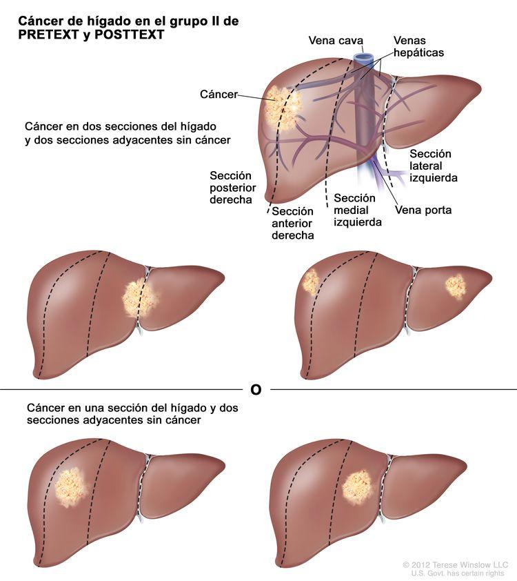 Cáncer de hígado en estadio II de PRETEXT; el dibujo muestra cinco hígados. Las líneas de puntos dividen cada hígado en cuatro secciones verticales de aproximadamente el mismo tamaño. En el primer hígado, se observa cáncer en las dos secciones de la izquierda. En el segundo hígado, se observa cáncer en las dos secciones de la derecha. En el tercer hígado, se observa cáncer en las secciones de la extrema izquierda y la extrema derecha. En el cuarto hígado, se observa cáncer en la segunda sección desde la izquierda. En el quinto hígado, se observa cáncer en la segunda sección desde la derecha.