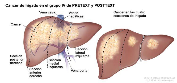 Cáncer de hígado en estadio IV de PRETEXT; el dibujo muestra dos hígados. Las líneas de puntos dividen cada hígado en cuatro secciones verticales de aproximadamente el mismo tamaño. En el primer hígado, se observa el cáncer a través de las cuatro secciones. En el segundo hígado, se observa el cáncer en las dos secciones de la izquierda y manchas de cáncer en las dos secciones de la derecha.