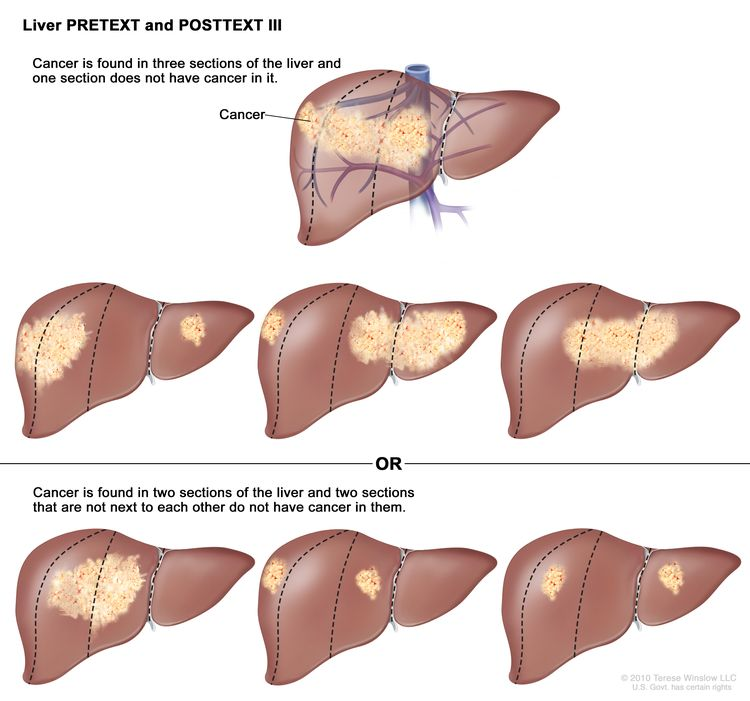 Liver PRETEXT III; drawing shows seven livers. Dotted lines divide each liver into four vertical sections that are about the same size. In the first liver, cancer is shown in three sections on the left. In the second liver, cancer is shown in the two sections on the left and the section on the far right. In the third liver, cancer is shown in the section on the far left and the two sections on the right. In the fourth liver, cancer is shown in three sections on the right. In the fifth liver, cancer is shown in the two middle sections. In the sixth liver, cancer is shown in the section on the far left and the second section from the right. In the seventh liver, cancer is shown in the section on the far right and the second section from the left.