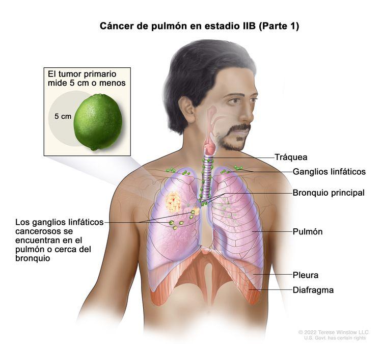 Cáncer de pulmón en estadio IIB (Parte 1). En la imagen se observan un tumor primario que mide 5 cm o menos en el pulmón derecho, y ganglios linfáticos cancerosos en el mismo pulmón que el tumor primario. También se observan la tráquea, el bronquio principal, la pleura y el diafragma.
