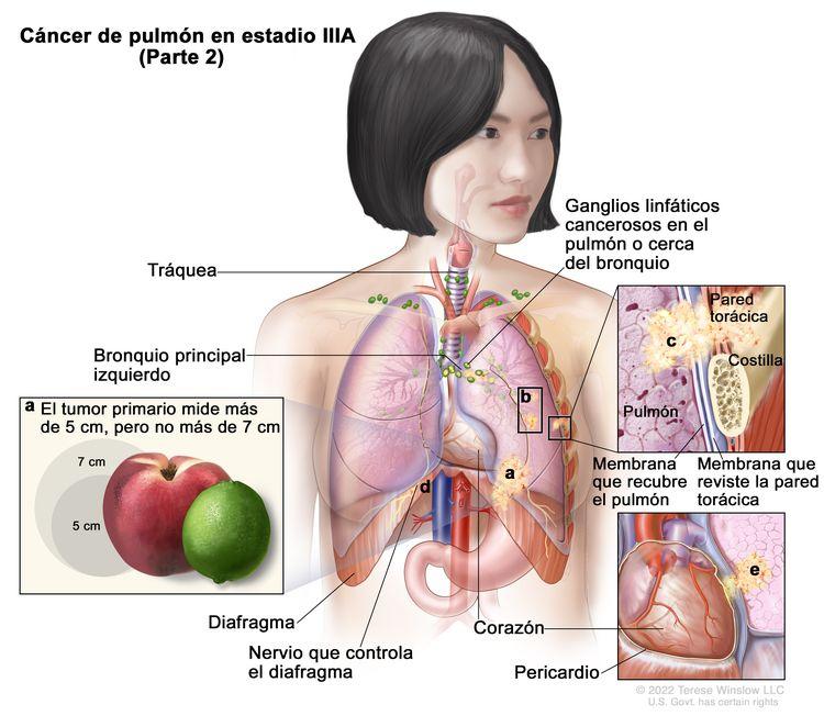 Cáncer de pulmón en estadio IIIA (Parte 2). En la imagen se observa lo siguiente: a) un tumor primario que mide más de 5 cm, pero no más de 7 cm en el pulmón izquierdo y ganglios linfáticos cancerosos en el pulmón o cerca del bronquio del mismo lado del tórax que el tumor primario; b) tumores separados en el mismo lóbulo del pulmón que el tumor primario; c) el cáncer se diseminó a la pared torácica o la membrana que reviste el interior de la pared torácica (recuadro superior izquierdo); d) el cáncer se diseminó al nervio que controla el diafragma; e) el cáncer se diseminó al pericardio (recuadro inferior izquierdo). También se muestran el bronquio principal izquierdo, el diafragma, el corazón y, en el recuadro superior derecho, una costilla.