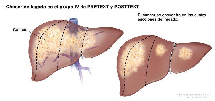 Cáncer de hígado en estadio IV de PRETEXT; el dibujo muestra dos hígados. Las líneas de puntos dividen cada hígado en cuatro secciones verticales de aproximadamente el mismo tamaño. En el primer hígado, se observa cáncer en las cuatro secciones. En el segundo hígado, se observa cáncer en las dos secciones de la izquierda y manchas de cáncer en las dos secciones de la derecha.