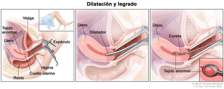 Dilatación y legrado (DyC). El dibujo a tres paneles muestra una vista lateral de la anatomía del aparato reproductor femenino durante un procedimiento de DyC. El primer panel muestra un espéculo que ensancha la abertura de la vagina. También se muestran el cuello uterino, el útero con tejido anormal, la vejiga y el recto; el recuadro muestra la parte inferior de una mujer cubierta por una sábana sobre una camilla con las piernas separadas y sus pies apoyados en los estribos. El panel del medio muestra el útero y un dilatador que se introduce por la vagina hacia el cuello uterino. El tercer panel muestra una cureta que raspa el tejido anormal del útero; el recuadro muestra una ampliación de la cureta con tejido anormal.