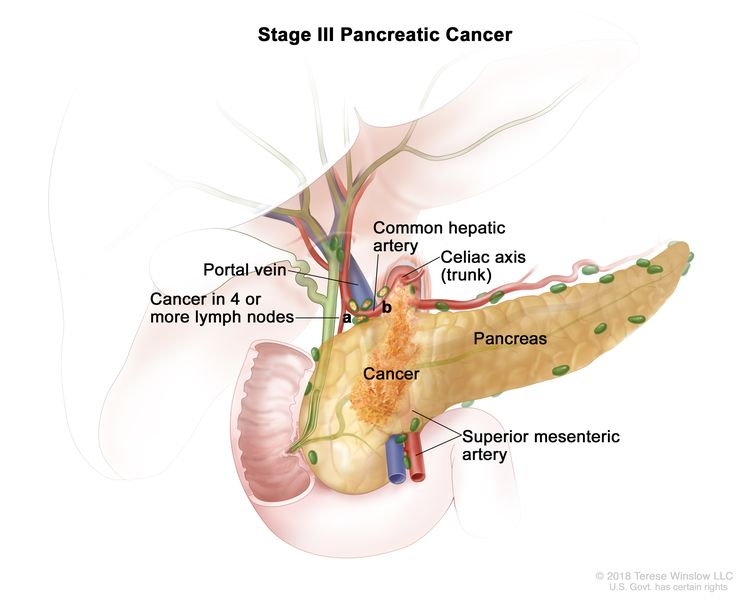 Stage III pancreatic cancer; drawing shows cancer in the pancreas and in (a) 4 or more nearby lymph nodes and (b) the common hepatic artery. Also shown are the portal vein, celiac axis (trunk), and superior mesenteric artery.
