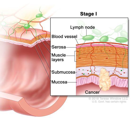 cancer colon definition)