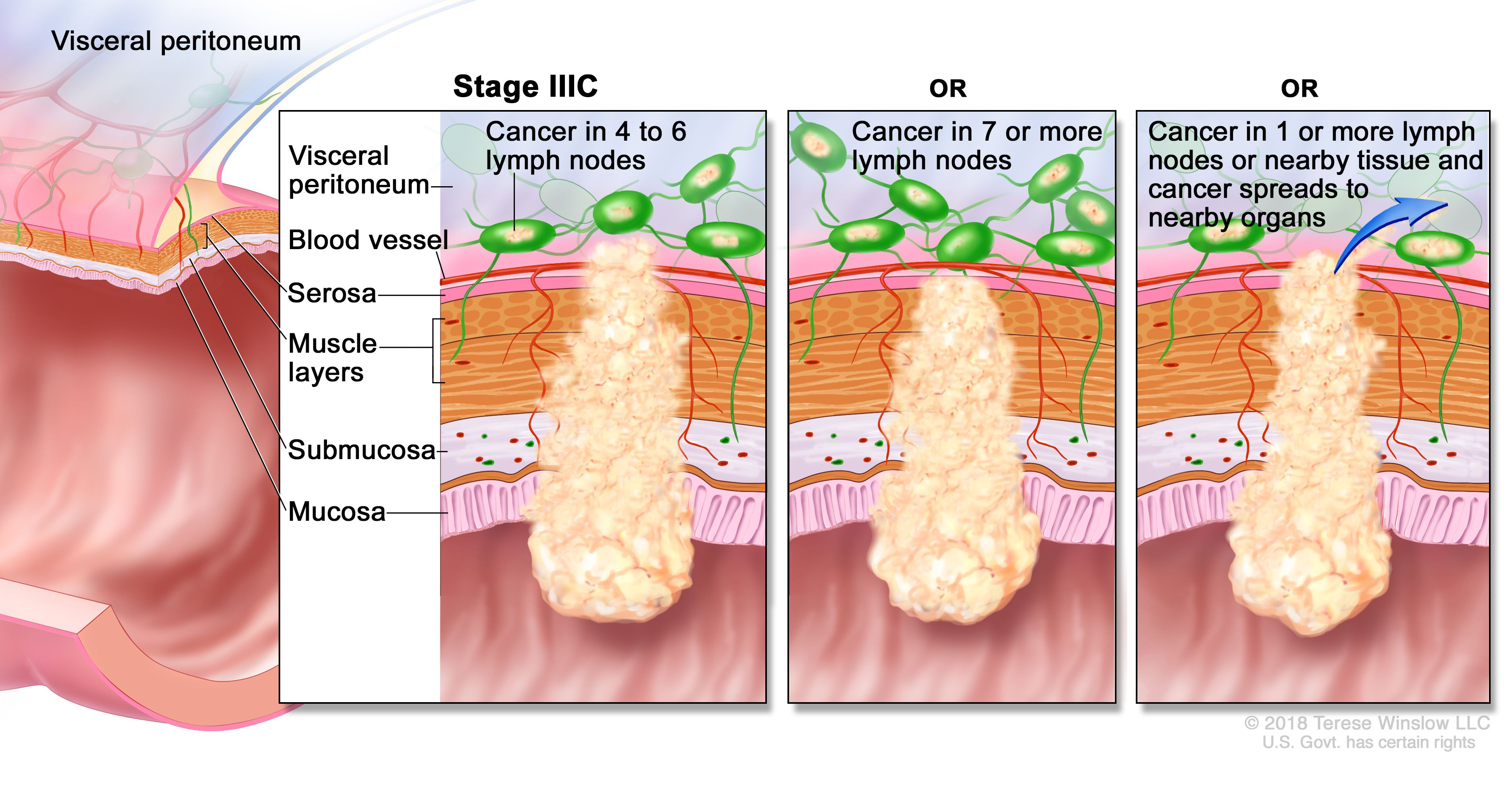 Colon Cancer Treatment Pdq Patient Version National Cancer Institute
