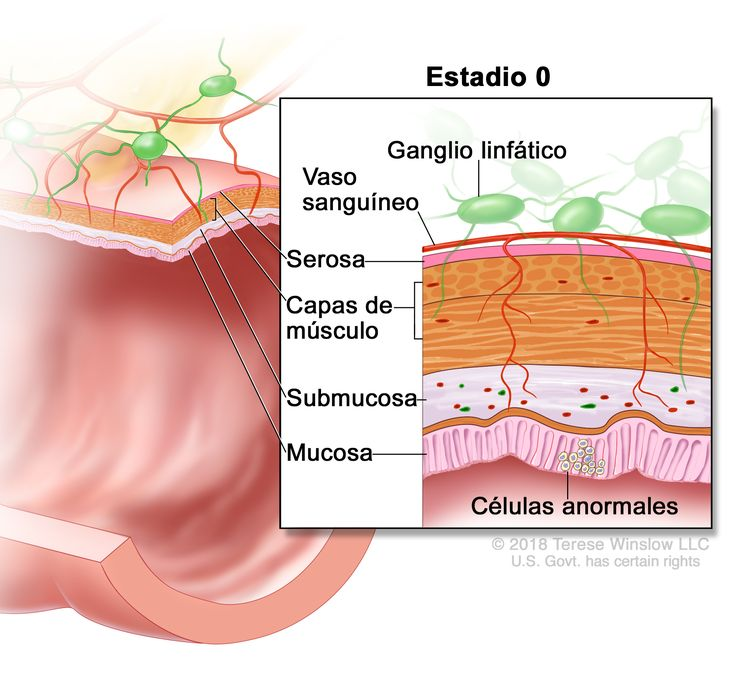 Carcinoma colorrectal in situ en estadio 0. En la imagen se observa un corte transversal del colon o el recto. En el recuadro se muestran las capas de la pared del colon o el recto y células anormales en la mucosa. También se muestran la submucosa, las capas de músculo, la serosa, un vaso sanguíneo y ganglios linfáticos.