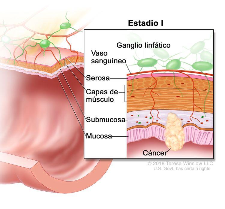Cáncer colorrectal en estadio I. En la imagen se observa un corte transversal del colon o el recto. En el recuadro se muestran las capas de la pared del colon o el recto, y cáncer en la mucosa y la submucosa. También se muestran las capas de músculo, la serosa, los vasos sanguíneos y los ganglios linfáticos.