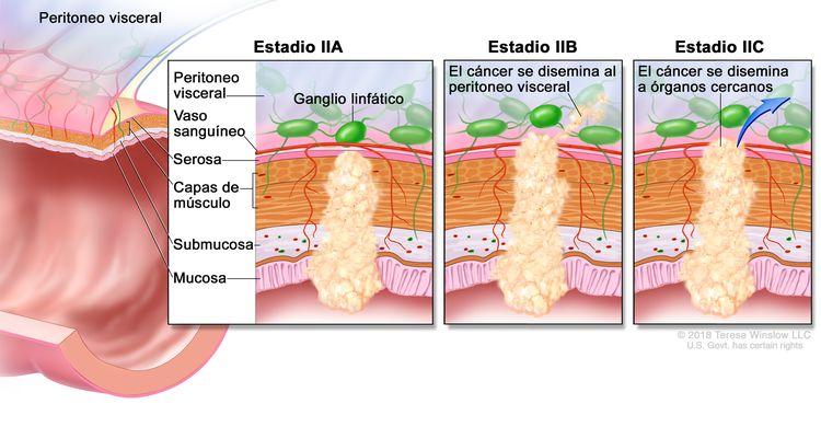 Cáncer colorrectal en estadio II. En la imagen se observa un corte transversal del colon o el recto, y un recuadro de tres paneles. En cada panel se muestran las capas de la pared del colon o el recto: la mucosa, la submucosa, las capas de músculo y la serosa. También se muestran vasos sanguíneos y ganglios linfáticos. En el primer panel se observa el cáncer en estadio IIA en la mucosa, la submucosa, las capas de músculo y la serosa. En el segundo panel se observa el cáncer en estadio IIB en todas las capas que se disemina a través de la serosa al peritoneo visceral. En el tercer panel se observa el cáncer en estadio IIC que se disemina a órganos cercanos.