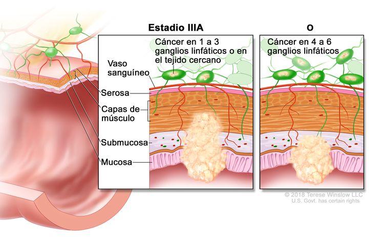 Cáncer colorrectal en estadio IIIA. En la imagen se muestra un corte transversal del recto o el colon y un recuadro de dos paneles. En cada panel se muestran las capas de la pared del colon o el recto: la mucosa, la submucosa, las capas de músculo y la serosa. También se observan vasos sanguíneos y ganglios linfáticos. En el primer panel se observa cáncer en la mucosa, la submucosa, las capas de músculo y en dos ganglios linfáticos. En el segundo panel se observa cáncer en la mucosa, la submucosa y en cinco ganglios linfáticos.