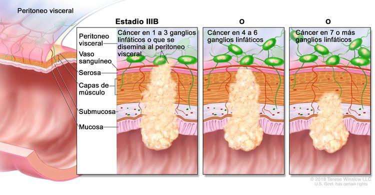 Cáncer colorrectal en estadio IIIB. En la imagen se muestra un corte transversal del colon o el recto y un recuadro de tres paneles. En cada panel se muestran las capas de la pared del colon o el recto: la mucosa, la submucosa, las capas de músculo y la serosa. También se muestran vasos sanguíneos y ganglios linfáticos. En el primer panel se observa cáncer en todas las capas, en tres ganglios linfáticos y en el peritoneo visceral. En el segundo panel se observa cáncer en todas las capas y en cinco ganglios linfáticos cercanos. En el tercer panel se observa cáncer en la mucosa, la submucosa, las capas de músculo y en siete ganglios linfáticos.