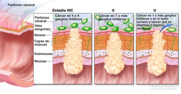 Cáncer colorrectal en estadio IIIC. En la imagen se muestran un corte transversal de la pared del colon o el recto y un recuadro de tres paneles. En cada panel se muestran las capas de la pared del colon o el recto: la mucosa, la submucosa, las capas de músculo y la serosa. También se muestran vasos sanguíneos y ganglios linfáticos. En el primer panel se observa cáncer en todas las capas, en cuatro ganglios linfáticos y en el peritoneo visceral. En el segundo panel se observa cáncer en todas las capas y en siete ganglios linfáticos. En el tercer panel se observa cáncer en todas las capas, en dos ganglios linfáticos y que se disemina a órganos cercanos.