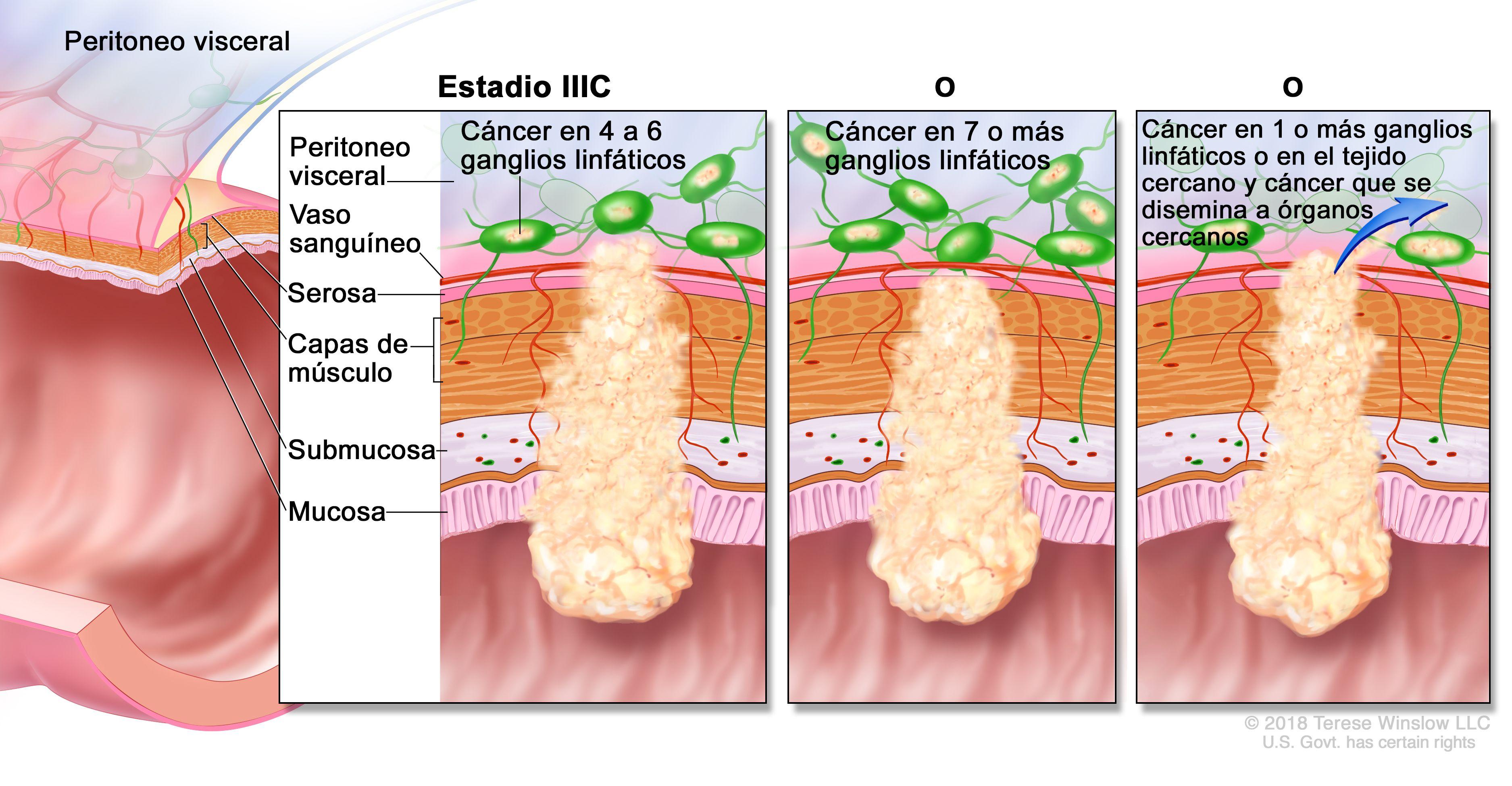 cancer de colon con ganglios afectados