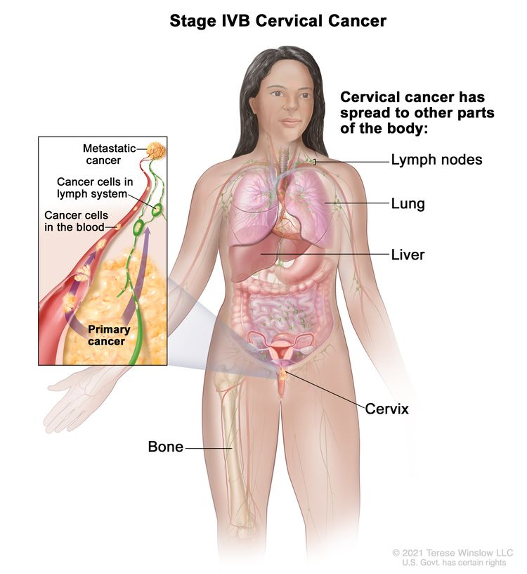 Stage IVB cervical cancer; drawing shows other parts of the body where cervical cancer may spread, including the lymph nodes, lung, liver, and bone. An inset shows cancer cells spreading from the cervix, through the blood and lymph system, to another part of the body where metastatic cancer has formed.