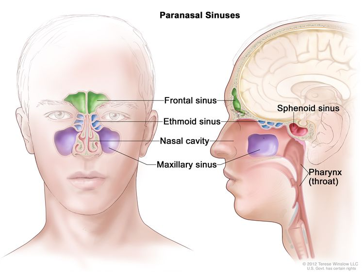 Anatomy of the paranasal sinuses; drawing shows front and side views of the frontal sinus, ethmoid sinus, maxillary sinus, and sphenoid sinus. The nasal cavity and pharynx (throat) are also shown.