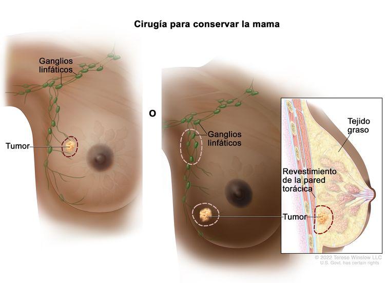 Cirugía para conservar la mama. En la imagen de la izquierda, se indica la zona que se extirpará del tumor y algo del tejido normal que lo rodea. En la imagen de la derecha, se indican las zonas de ganglios linfáticos debajo del brazo y el tumor con parte del revestimiento de la pared torácica cercana al tumor que se extirparán. También se muestra el tejido graso.