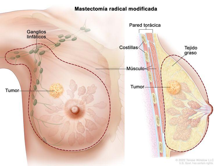 Mastectomía radical modificada. En la imagen de la izquierda se indica la zona que se extirpará de la mama: todos los ganglios linfáticos debajo del brazo o la mayoría de estos, el revestimiento de los músculos del pecho y, a veces, parte de los músculos de la pared torácica. En la imagen de la derecha se muestra una sección transversal de la mama que incluye la pared torácica (costillas y músculos), el tejido graso y el tumor.