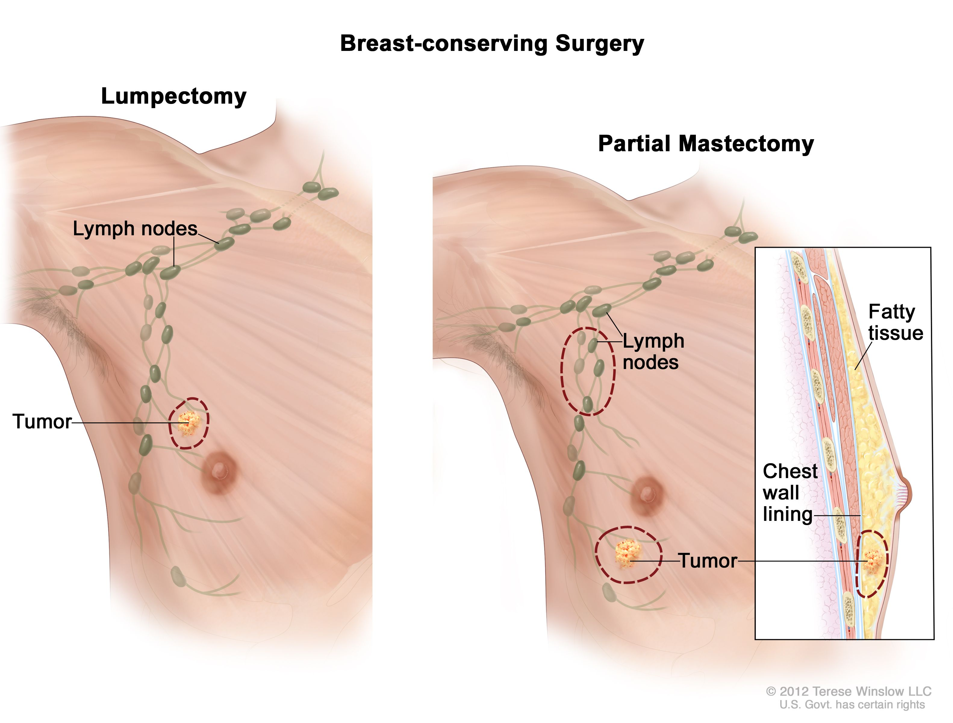 Male Breast Cancer Awareness Symptoms Breast Lymph Nodes Picture Of Breast Cancer Cleveland Oh University Hospitals