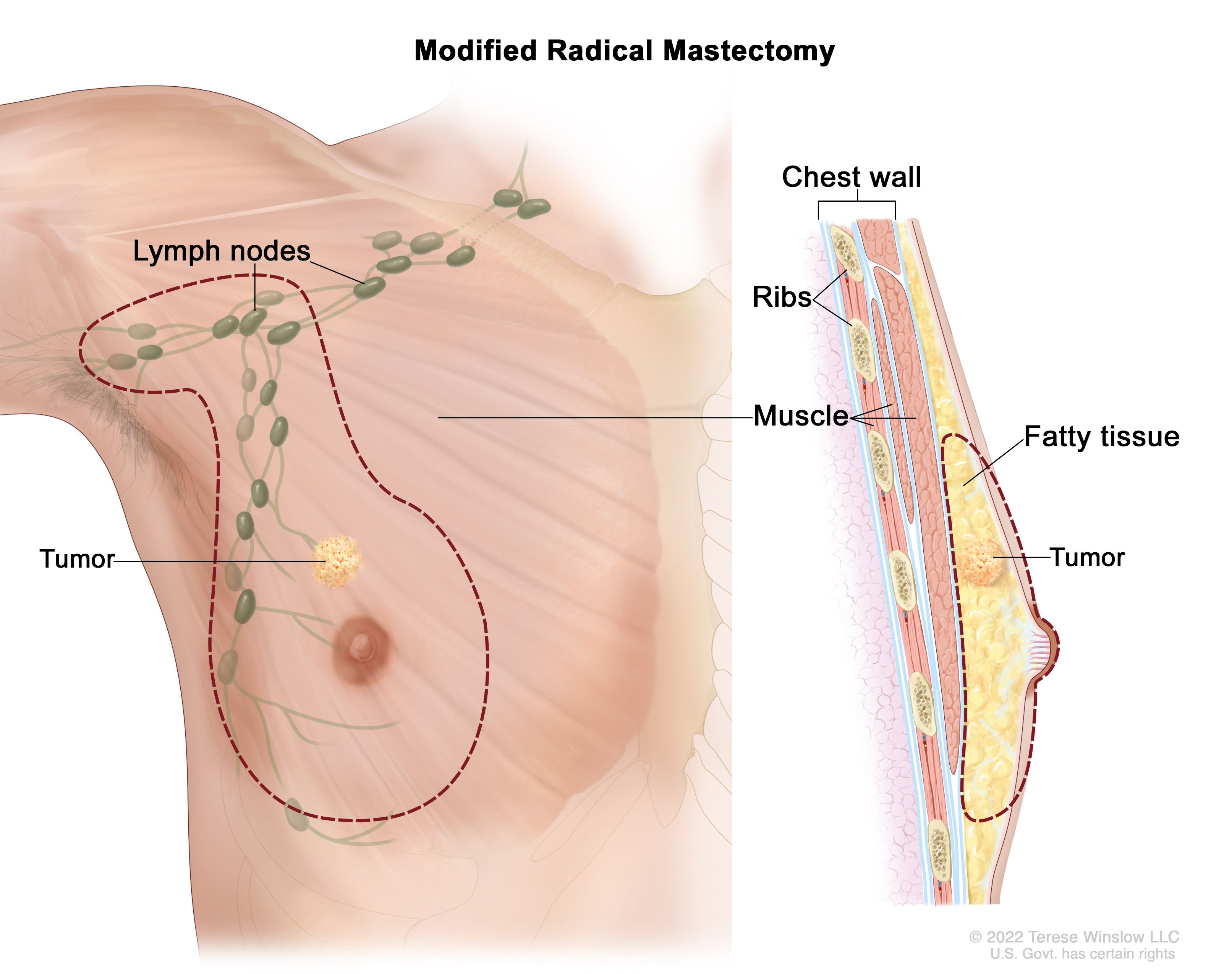 Male Breast Cancer Awareness Symptoms Breast Lymph Nodes