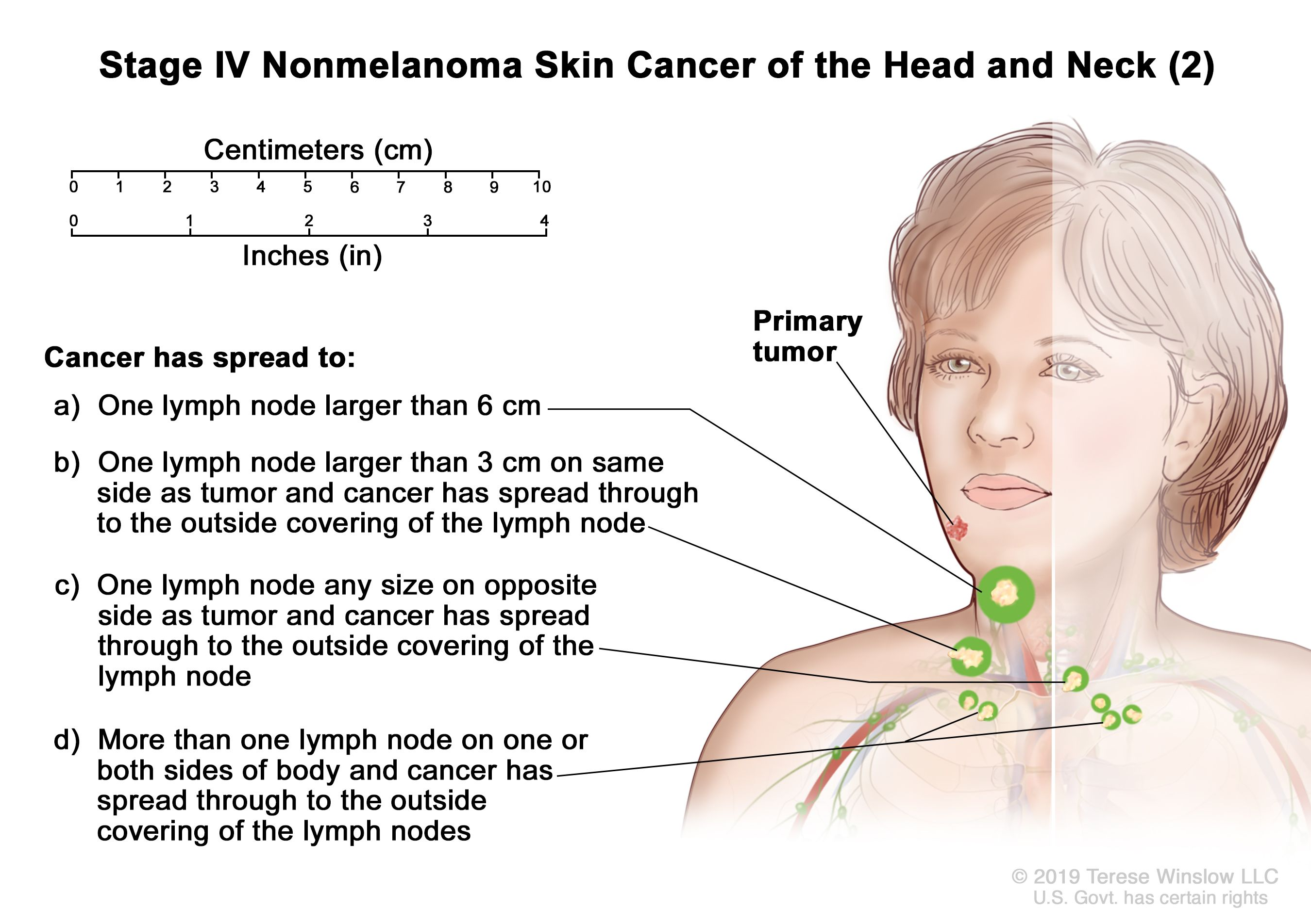 Skin Cancer Types, Symptoms & Information - Dana-Farber Cancer Institute |  Boston, MA