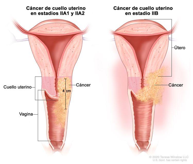 Cáncer de cuello uterino en estadio II. En la imagen se observan dos cortes transversales del útero, el cuello uterino y la vagina. En la imagen de la izquierda se muestra cáncer de cuello uterino en estadios IIA1 y IIA2, con un tumor que mide 4 cm y se diseminó a los dos tercios superiores de la vagina. En la imagen de la derecha se muestra cáncer de cuello uterino en estadio IIB que se diseminó del cuello uterino al tejido que rodea el útero.