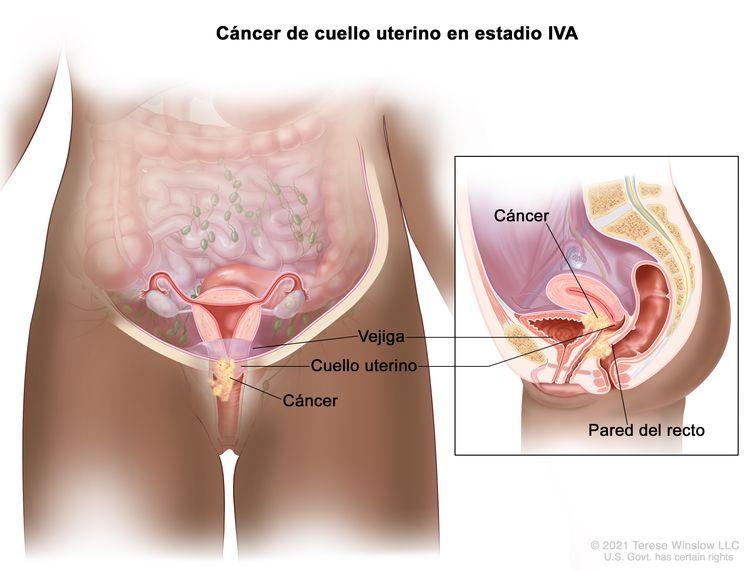 Cáncer de cuello uterino en estadio IVA. En la imagen y en el recuadro se observa cáncer que se diseminó del cuello uterino a la vejiga y la pared del recto.