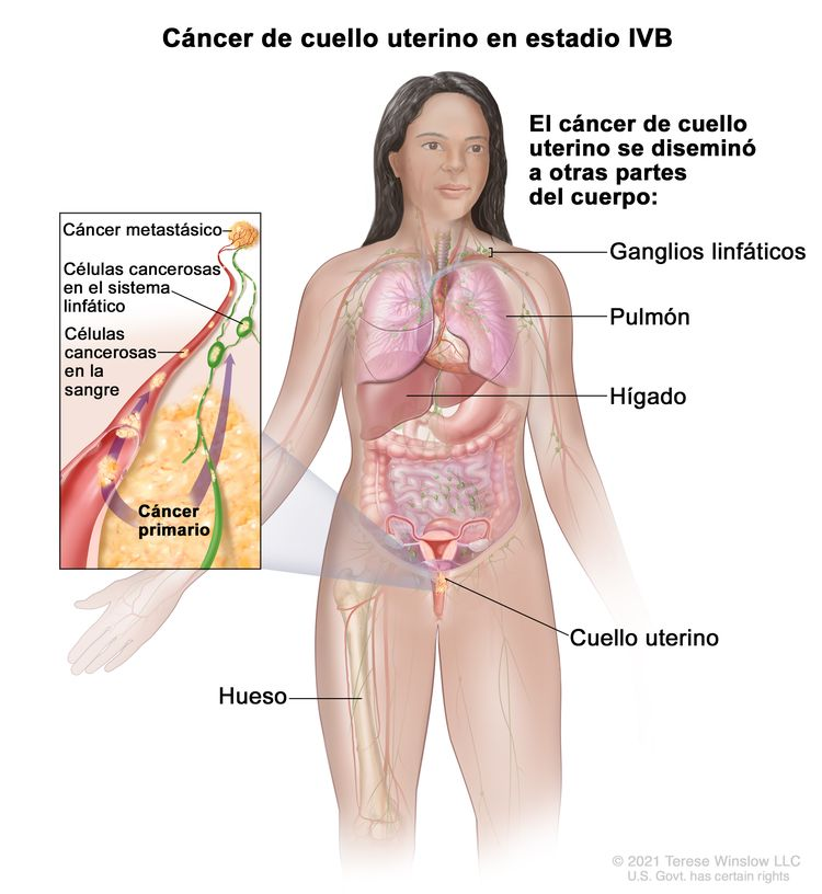 Cáncer de cuello uterino en estadio IVB. En la imagen se observan otras partes del cuerpo donde es posible que el cáncer de cuello uterino se disemine, como los ganglios linfáticos, el pulmón, el hígado y el hueso. En el recuadro se muestran células cancerosas que se diseminan desde el cuello uterino, a través de la sangre y el sistema linfático, a otras partes del cuerpo donde se formó el cáncer metastásico.