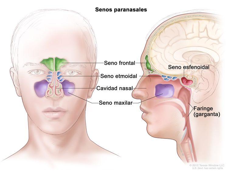 Anatomía de los senos paranasales. En la imagen se observan vistas frontales y laterales del seno frontal, el seno etmoidal, el seno maxilar y el seno esfenoidal. También se muestran la cavidad nasal y la faringe (garganta).