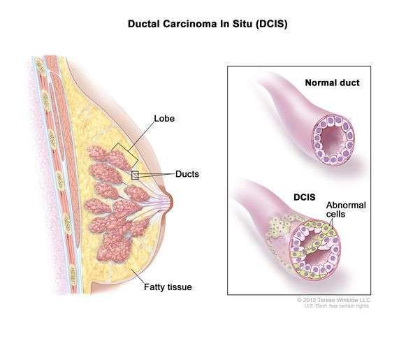 Definition Of Ductal Carcinoma In Situ Nci Dictionary Of Cancer Terms National Cancer Institute