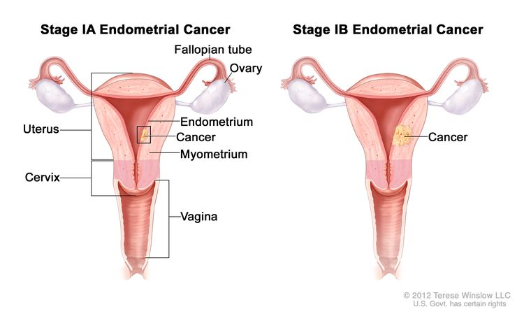 Stage IA and stage IB endometrial cancer shown in two cross-section drawings of the uterus and cervix. Drawing on the left shows stage IA, with cancer in the endometrium and myometrium of the uterus. Drawing on the right shows stage IB, with cancer more than halfway through the myometrium. Also shown are the fallopian tubes, ovaries, and vagina.