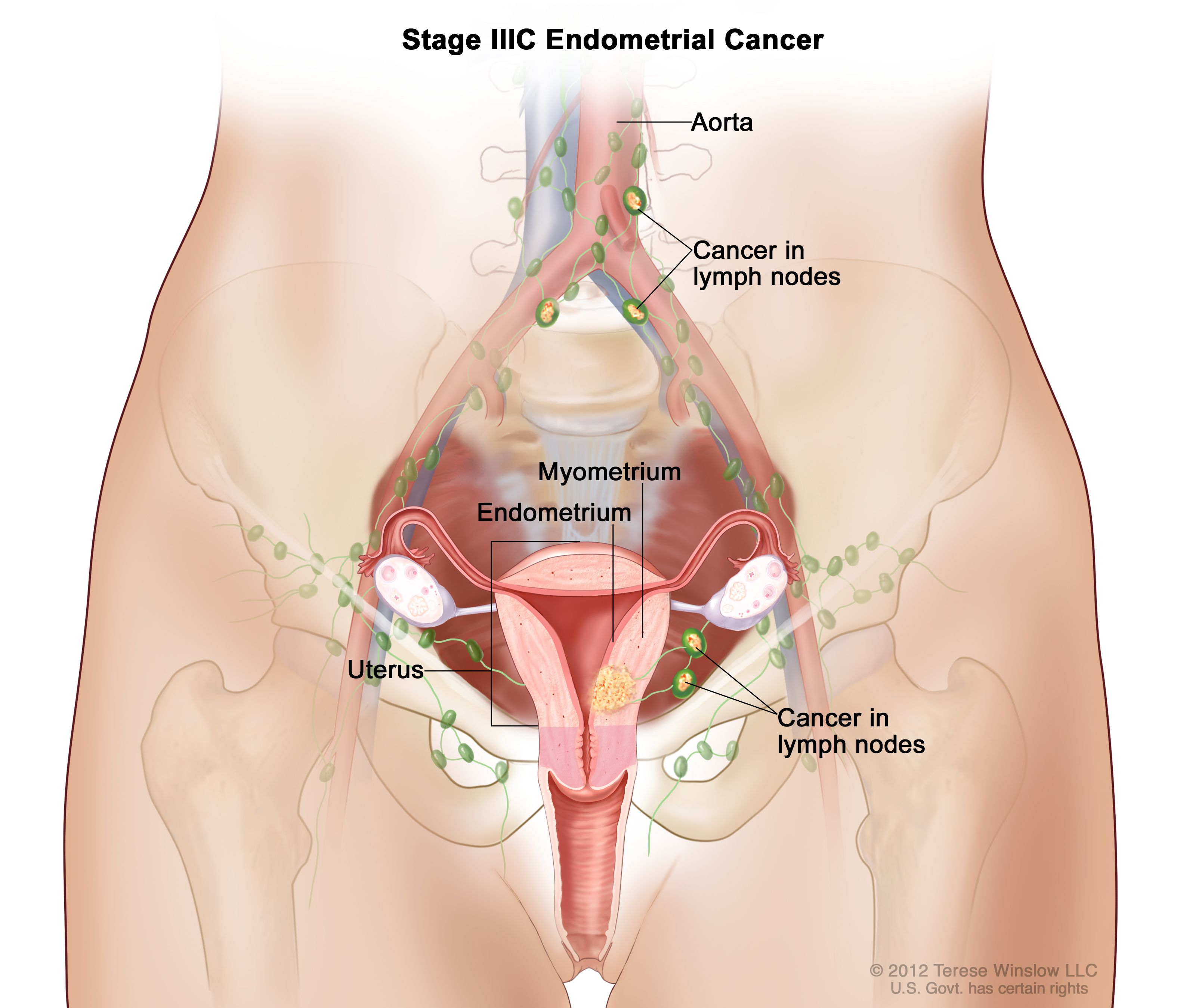 Definition Of Stage Iii Endometrial Cancer Nci Dictionary Of Cancer Terms National Cancer Institute