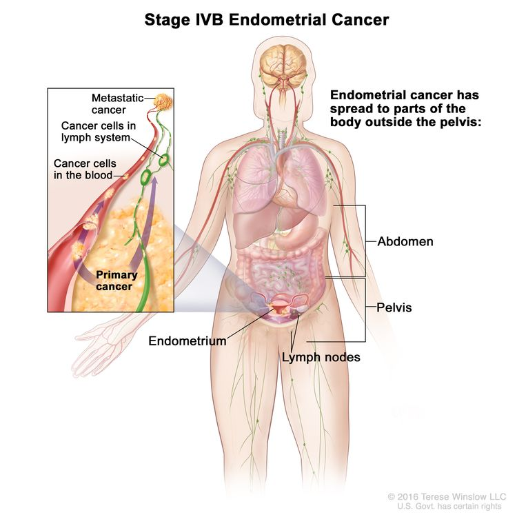 Stage IVB endometrial cancer; drawing shows cancer has spread to parts of the body outside the pelvis, including the abdomen and/or lymph nodes in the groin. An inset shows cancer cells spreading from the endometrium, through the blood and lymph system, to another part of the body where  metastatic cancer has formed.