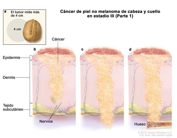 Cáncer de piel no melanoma de cabeza y cuello en estadio III (Parte 1). En la imagen se observan varias situaciones: a) en un recuadro, se muestra un tumor que mide más de 4 cm, que es casi el tamaño de una nuez. Además, se observa que el cáncer se disemina a través de la epidermis por: b) el tejido que reviste los nervios debajo de la dermis, c) debajo del tejido subcutáneo, y d) el hueso.