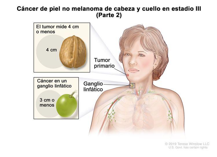 Cáncer de piel no melanoma de cabeza y cuello en estadio III (Parte 2). En la imagen se observa un tumor primario en la cara y cáncer en un ganglio linfático del mismo lado del cuerpo que el tumor. En el recuadro superior se muestra que el tumor mide 4 cm o menos y que 4 cm es casi el tamaño de una nuez. En el recuadro inferior se muestra que el cáncer en un ganglio linfático con cáncer mide 3 cm o menos y que 3 cm es casi el tamaño de una uva.