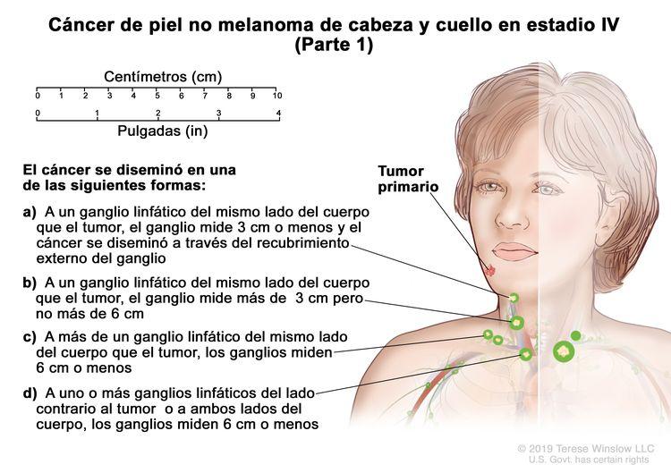 Cáncer de piel no melanoma de cabeza y cuello en estadio IV (Parte 1). En la imagen se observa un tumor primario en la cara y cáncer que se diseminó en una de las siguientes formas: a) a un ganglio linfático del mismo lado del cuerpo que el tumor, el ganglio mide 3 cm o menos y el cáncer se diseminó a través del recubrimiento externo del ganglio linfático; b) a un ganglio linfático del mismo lado del cuerpo que el tumor, el ganglio mide más de 3 cm pero no más de 6 cm; c) a más de un ganglio linfático del mismo lado del cuerpo que el tumor, los ganglios miden 6 cm o menos; y d) uno o más ganglios linfáticos del lado del cuerpo contrario al tumor o a ambos lados del cuerpo, los ganglios miden 6 cm o menos. También se observan una regla de 10 cm y una regla de 4 in.