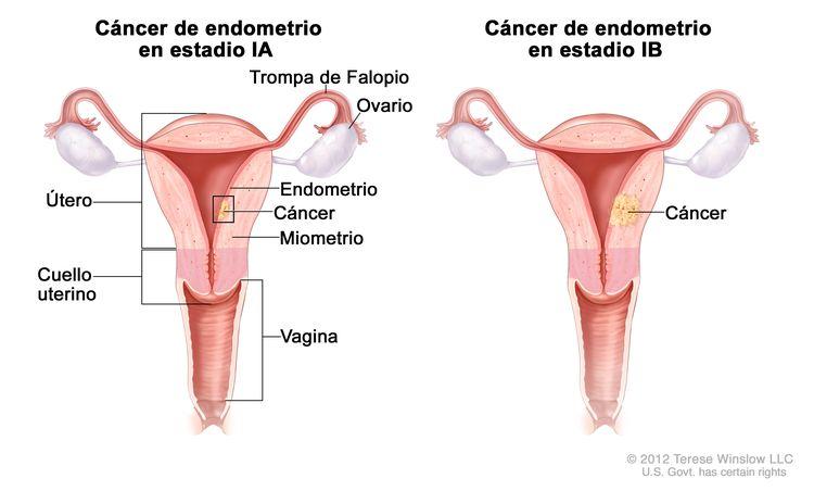 Los dibujos muestran el cáncer de endometrio en estadio IA y estadio IB en dos secciones transversales del útero y el cuello uterino. El dibujo de la izquierda muestra el estadio IA con cáncer en el endometrio y el miometrio del útero. El dibujo de la derecha muestra el estadio IB con cáncer que atravesó más de la mitad del miometrio. También se muestran las trompas de Falopio, los ovarios y la vagina.