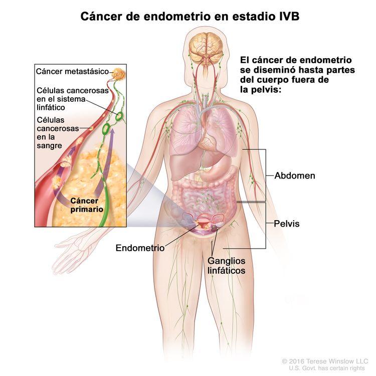Cáncer de endometrio en estadio IVB; el dibujo muestra cáncer que se diseminó hasta partes del cuerpo afuera de la pelvis, incluso el abdomen o los ganglios linfáticos de la ingle. En el recuadro se observan células cancerosas que se diseminan desde el endometrio, a través de la sangre y el sistema linfático, a otra parte del cuerpo donde se formó el cáncer metastásico.