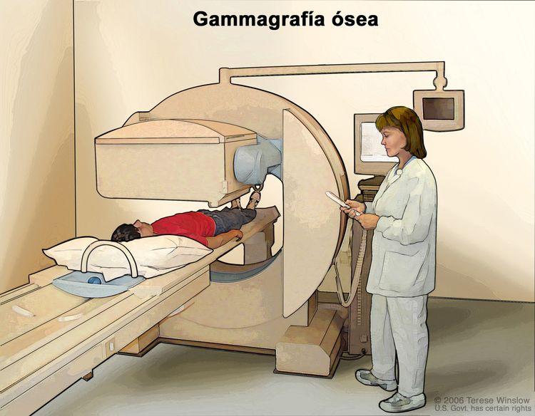 Gammagrafía ósea; en la imagen se observa a un paciente acostado sobre una camilla que se desliza bajo un escáner, un técnico que maneja el escáner y una pantalla que mostrará imágenes durante la exploración.